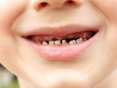 Sâu răng là bệnh lý răng hàm mặt phổ biến ở trẻ em.